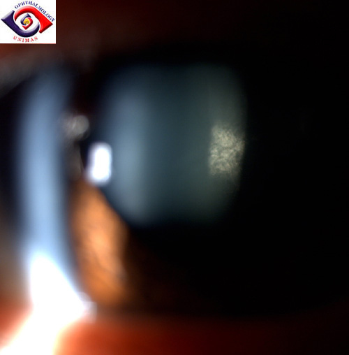 Bilateral subcapsular cataract 1psccataract.jpg