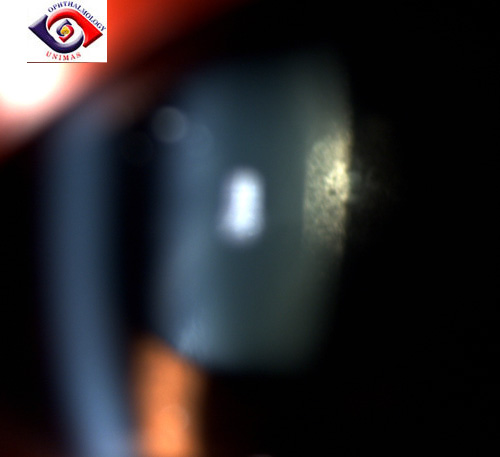 Bilateral subcapsular cataract 1psccataract1.jpg