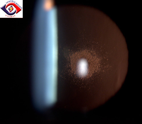 Bilateral subcapsular cataract 1psccataract2.jpg