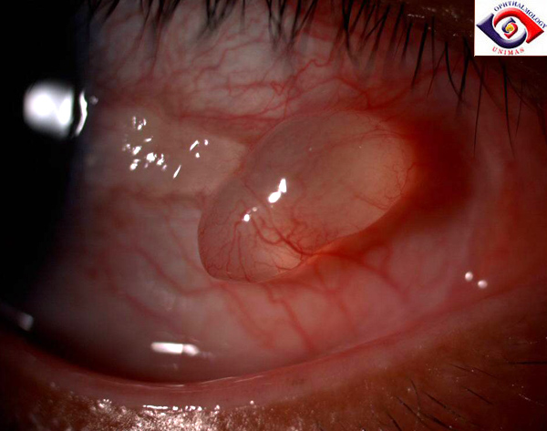 There's a Bump on My Eye Part 2: Conjunctival Cyst - Eyedolatry