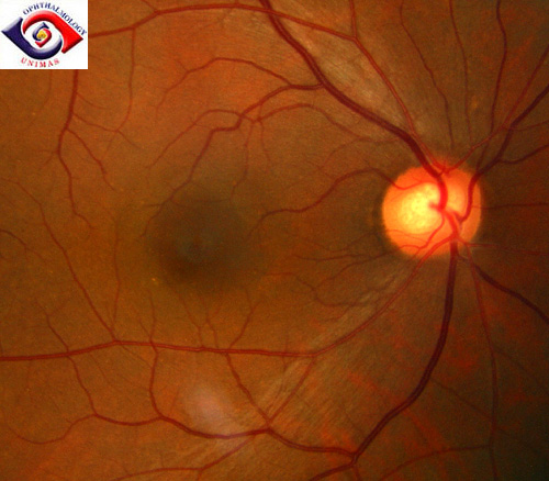 Optic Nerve Cupping: Atlas Of Ophthalmology: Neuro-ophthalmoloygy: Unilateral