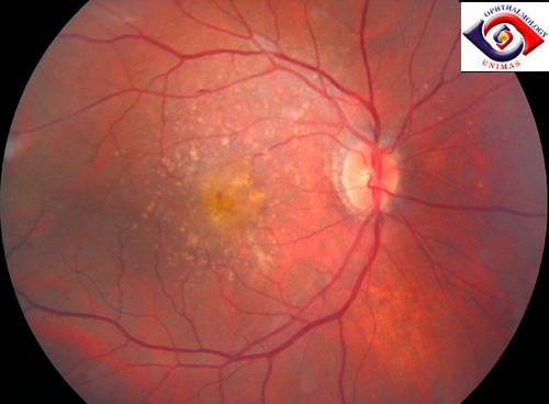 Atlas of Ophthalmology: Dry ARMD by Dr. Ngo Chek Tung